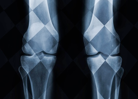 Tips for keeping your knees healthy.